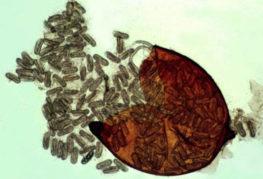 Раздавленная циста нематоды под микроскопом